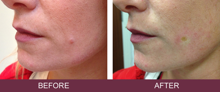 Before and after removal of benign intradermal naevus