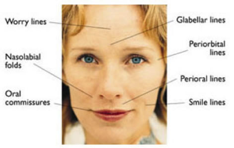 Diagram of various facial wrinkles