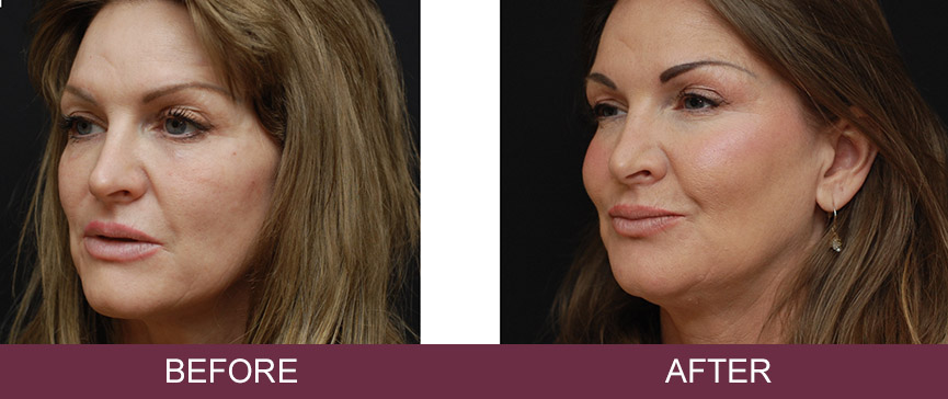 Before and after dermal fillers