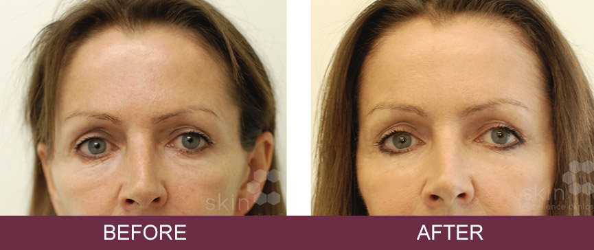 Before and after derma fillers