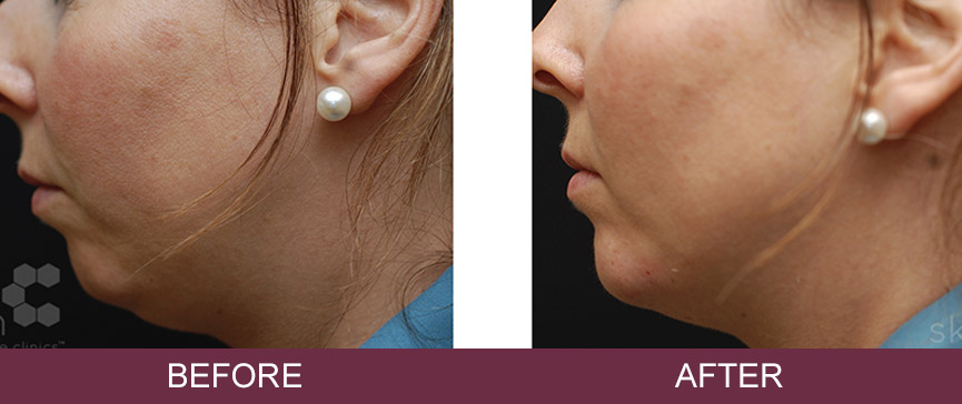 Before and after Derma filler