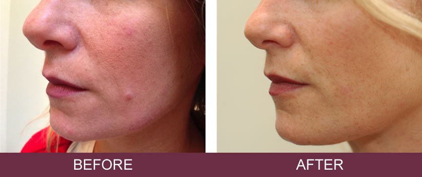 Before and after Radio Surgical mole removal