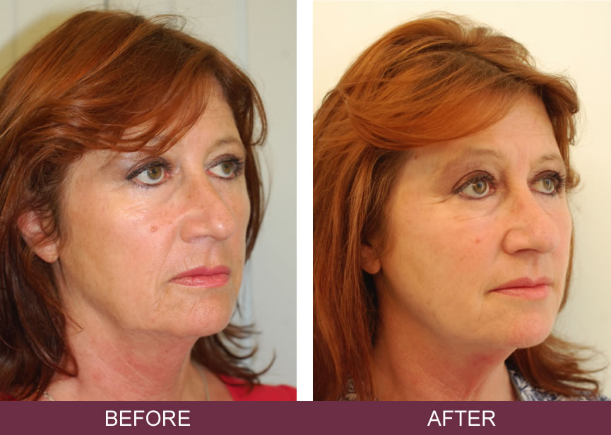 Silhouette Soft Thread Lifts - Non Surgical Face Lift ...