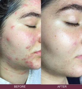 Mezotix acne treatment